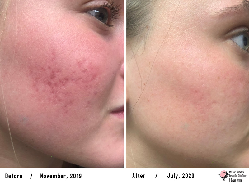 Microneedling in Winnipeg